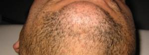 uitdunnen baardgroei met laser / IPL