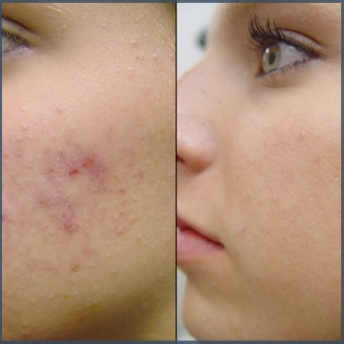 Acne therapie huidtherapie
